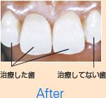 治療した歯 治療してない歯 After